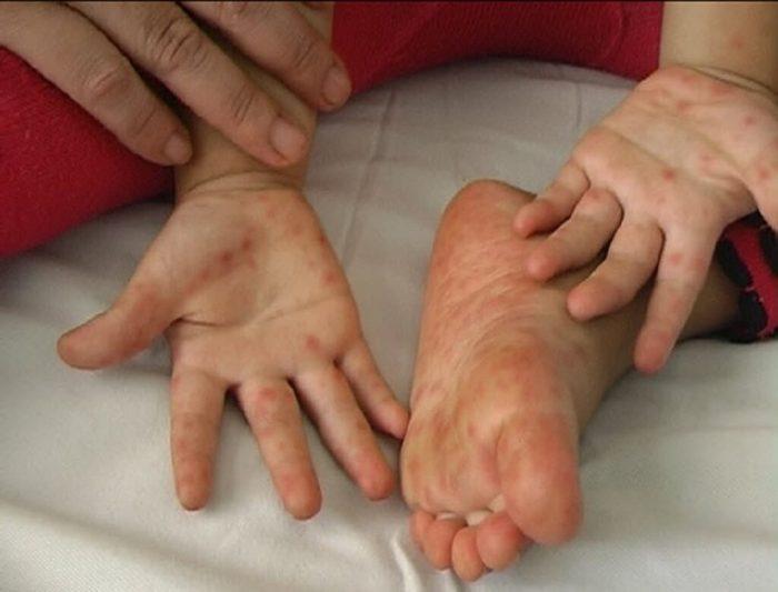 dấu hiệu bệnh tay chân miệng ở trẻ sơ sinh
